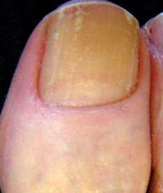 Мирамистин лечит грибок ногтей на ногах