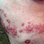 Herpes zoster haemorrhagica